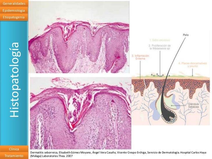 El tratamiento de la psoriasis medikamentozno por los preparados