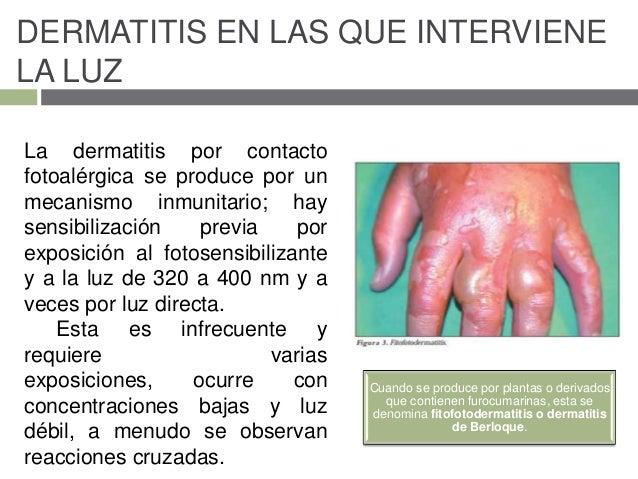 La sal iletsk para el tratamiento de la psoriasis