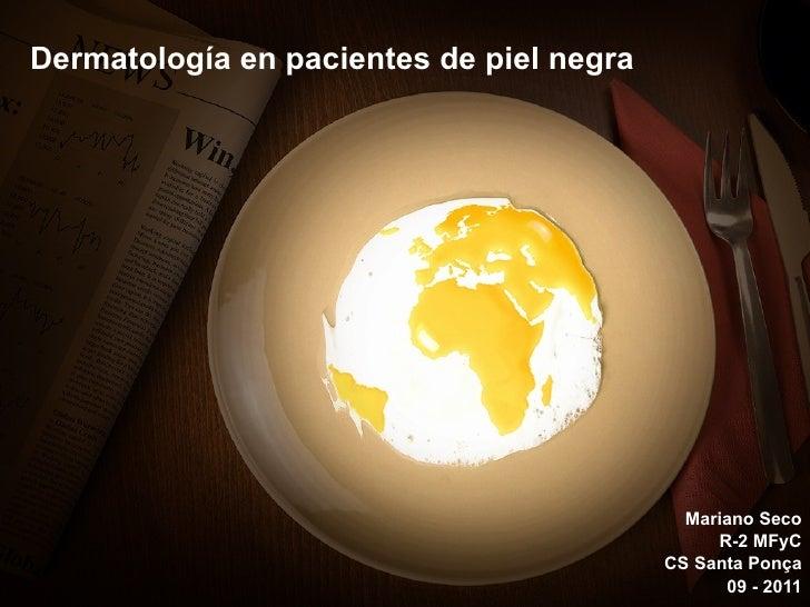 Dermatología en pacientes de piel negra Mariano Seco R-2 MFyC CS Santa Ponça 09 - 2011