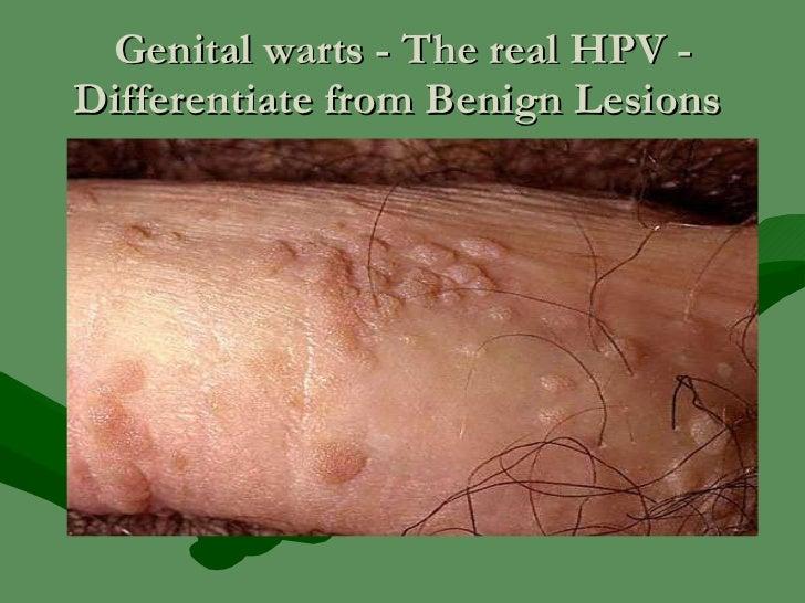 Genital wart - Wikipedia