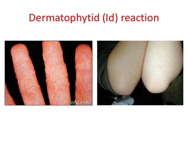 H Antigen Dermatophytosis, raghu
