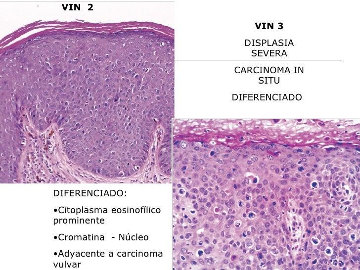 aabm dermatosis vulvares