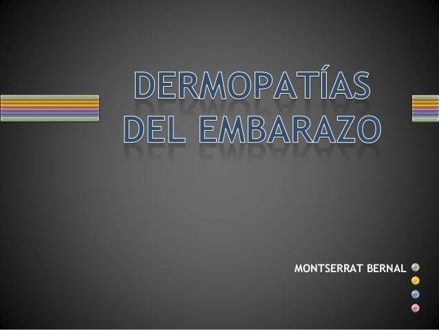 MONTSERRAT BERNAL