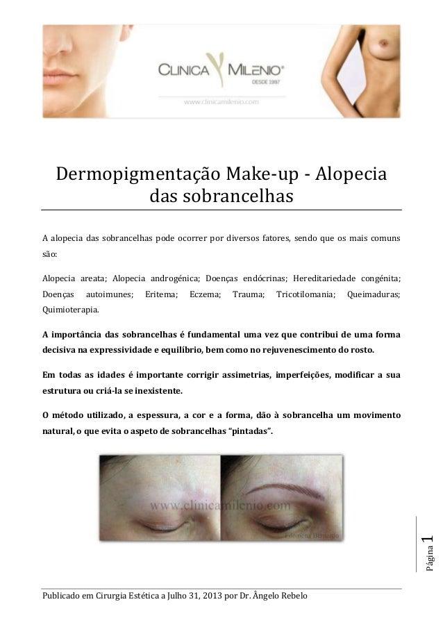 Publicado em Cirurgia Estética a Julho 31, 2013 por Dr. Ângelo Rebelo Página1 Dermopigmentaçao Make-up - Alopecia das sobr...