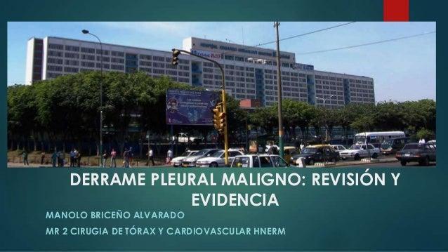 DERRAME PLEURAL MALIGNO: REVISIÓN Y EVIDENCIA MANOLO BRICEÑO ALVARADO MR 2 CIRUGIA DE TÓRAX Y CARDIOVASCULAR HNERM