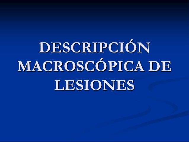 DESCRIPCIÓN MACROSCÓPICA DE LESIONES