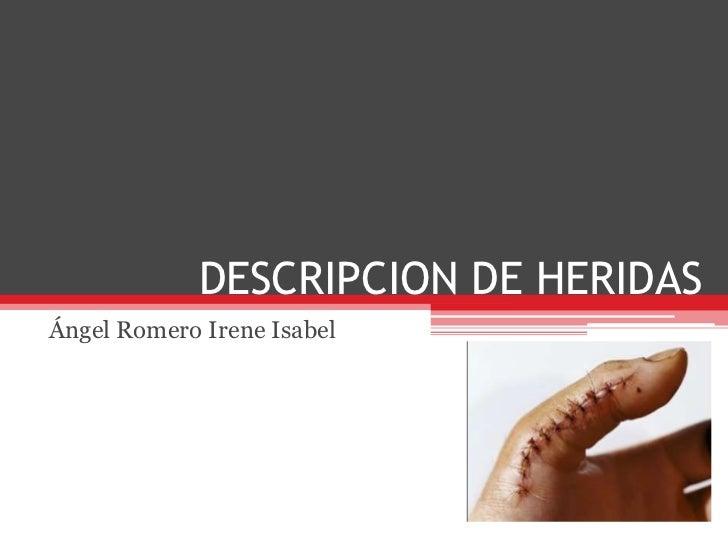 DESCRIPCION DE HERIDAS<br />Ángel Romero Irene Isabel<br />