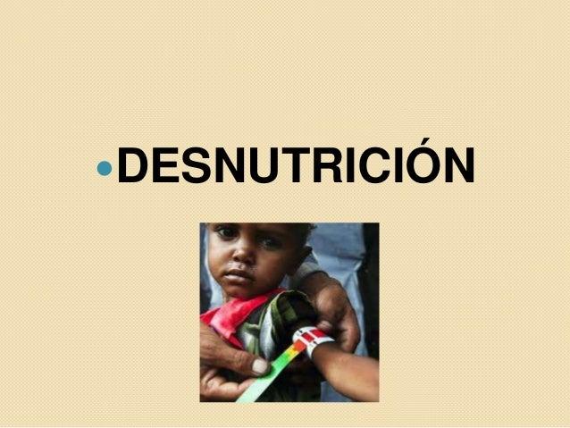 Desnutrición internet
