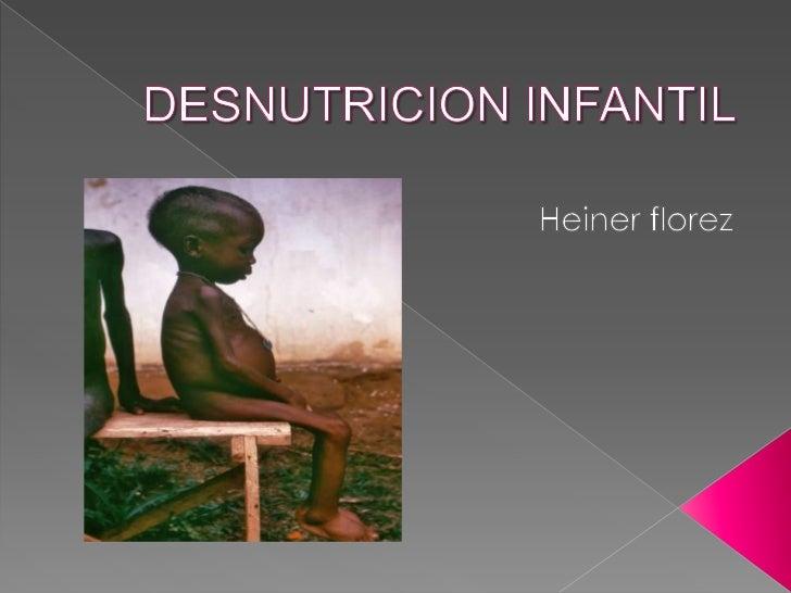 DESNUTRICION INFANTIL<br />Heiner florez<br />