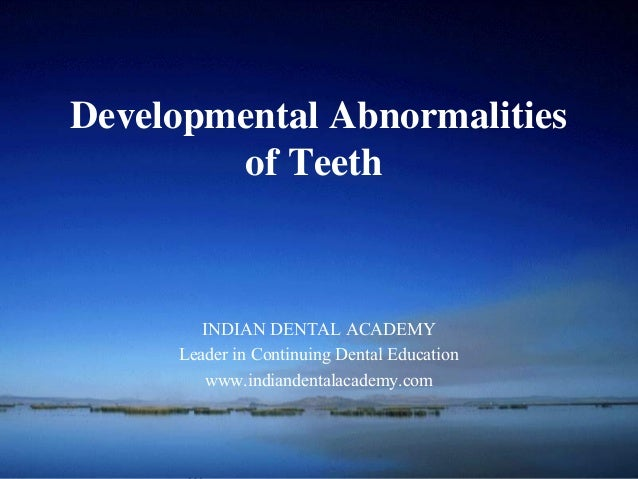 School ofDevelopmental Abnormalities        of Teeth        INDIAN DENTAL ACADEMY     Leader in Continuing Dental Educatio...