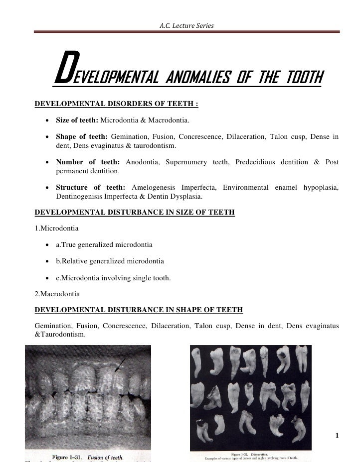 A.C. Lecture Series     D     EVELOPMENTAL ANOMALIES OF THE TOOTHDEVELOPMENTAL DISORDERS OF TEETH :    Size of teeth: Mic...
