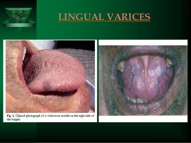 Final Oral Path - StudyBlue