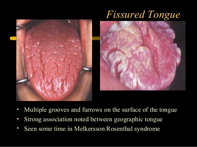 Developmental disorders of orofacial structures dental oral pathology