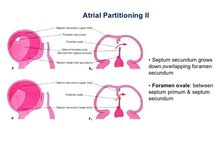 Anatomy as well 6249209 further Pancreatic Divisum as well An Informative Ge ic Grammatical besides 6102566. on dorsal and ventral portion