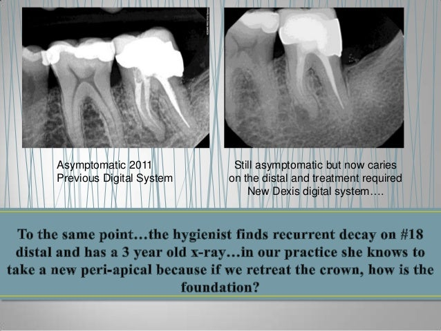 Asymptomatic 2011 Previous Digital System  Still asymptomatic but now caries on the distal and treatment required New Dexi...