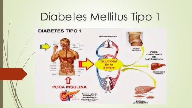 Diabetes Mellitus: Cura De La Diabetes Mellitus Tipo 2
