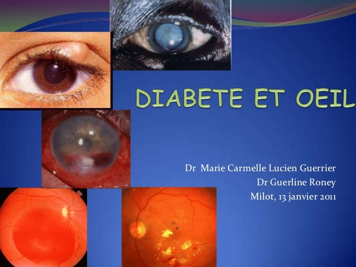 Diabetes and the Eye (French) Symposia - The CRUDEM Foundation