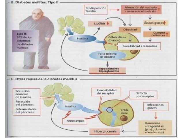 Diabetes fisiopatologia