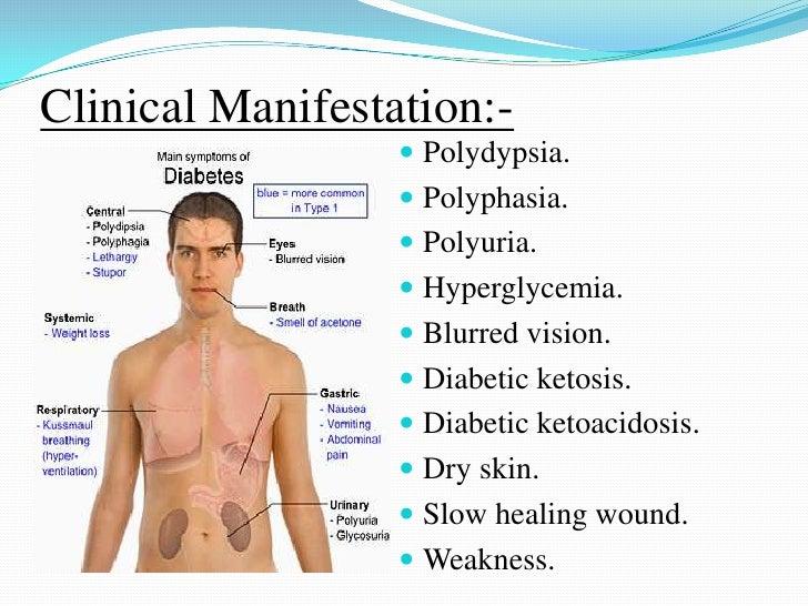 the clinical description of diabetes mellitus Diabetes mellitus clinical trial clinical trial for characterization of diabetes mellitus in fibrous dysplasia/mccune-albright syndrome clinical trial description.