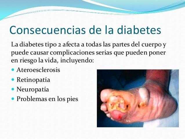 diabetes tipo 2 efectos  cigarrillo salud
