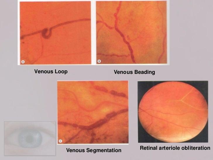 Vitreous Hemorrhage  Retina Eya Care PC
