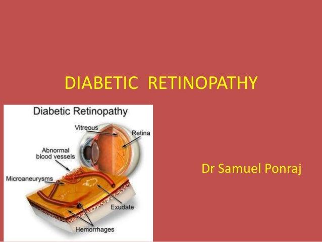 DIABETIC RETINOPATHY Dr Samuel Ponraj