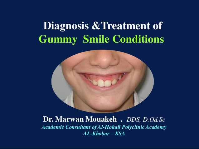Diagnosis &Treatment of Gummy Smile Conditions  Dr. Marwan Mouakeh . DDS, D.Od.Sc Academic Consultant of Al-Hokail Polycli...
