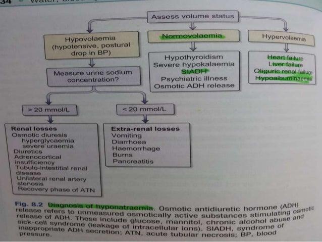 Diagnosis of Hyponatremia