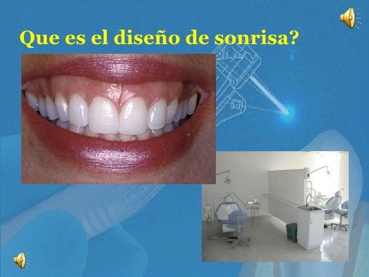 Que es el diseño de sonrisa?
