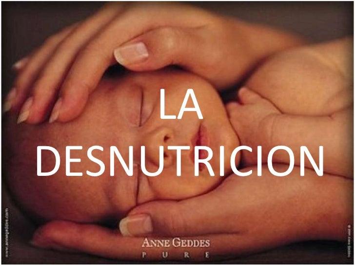 LA DESNUTRICION<br />