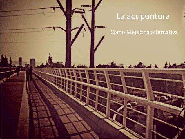La acupuntura Como Medicina alternativa