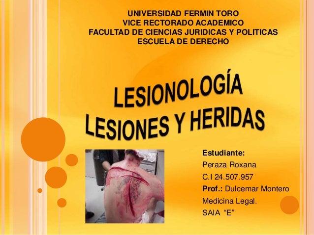 UNIVERSIDAD FERMIN TORO VICE RECTORADO ACADEMICO FACULTAD DE CIENCIAS JURIDICAS Y POLITICAS ESCUELA DE DERECHO Estudiante:...