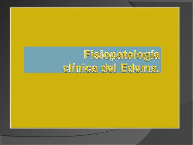 Presión de líquidos en venas, arterias y linfáticos. Trombosis Flebitis Várices ICC. FACTORES.