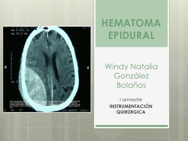 HEMATOMA                                                                                                      EPIDURAL    ...