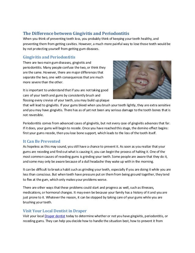 The Difference between Gingivitis and Periodontitis When you think of preventing teeth loss, you probably think of keeping...