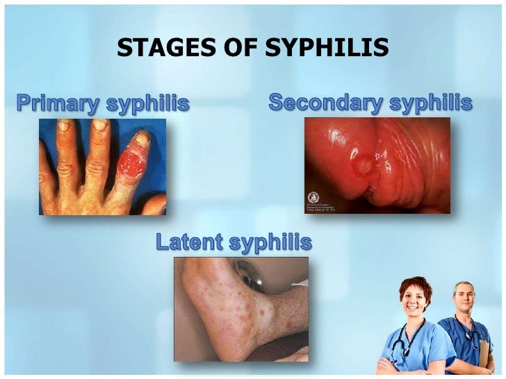 Stage syphilis symptoms latent