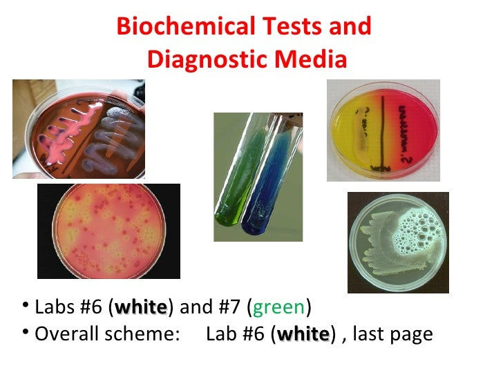 Biochemical Tests and             Diagnostic Media• Labs #6 (white) and #7 (green)           white• Overall scheme: Lab #6...