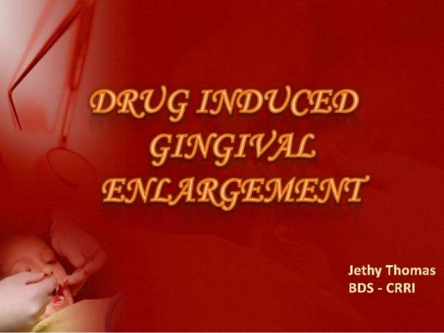 •   INTRODUCTION•   CLASSIFICATION•   DRUG INDUCED GINGIVAL ENLARGEMENT•   ETIOPATHOGENESIS•   DIAGNOSIS•   SYMPTOMS•   CL...