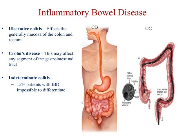 Digestive System And Its Disease