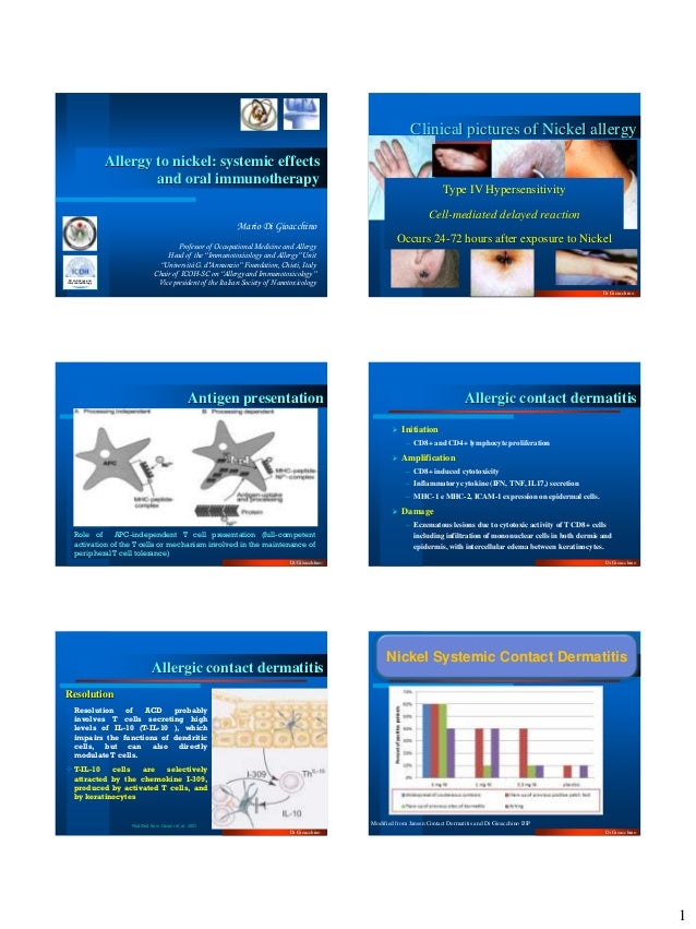 Clinical pictures of Nickel allergy                     Allergy to nickel: systemic effects                             an...
