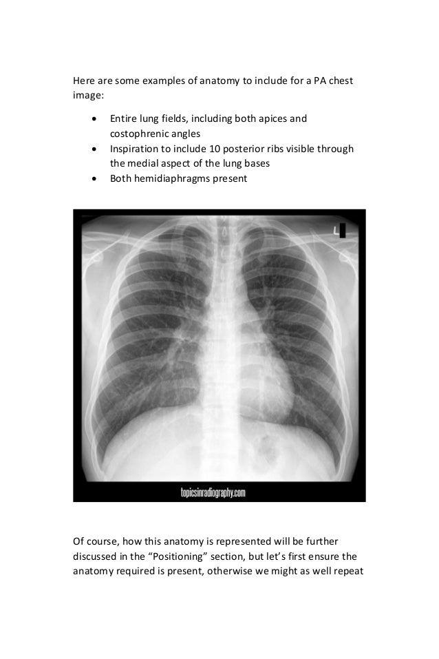 digital radiography image critique