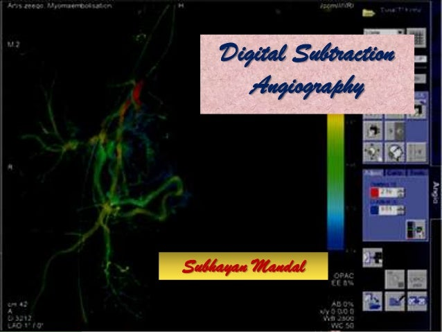 Free Powerpoint Templates Page 1 Digital Subtraction Angiography Subhayan Mandal