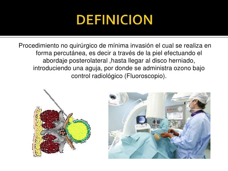 Los síntomas de la osteocondrosis en el departamento de pecho