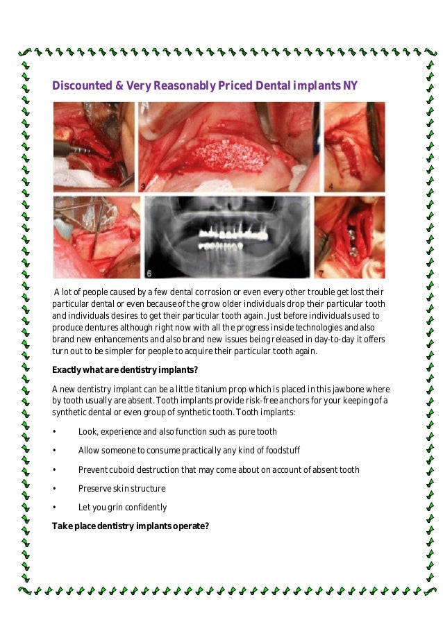 Discounted & Very Reasonably Priced Dental implants NY A lot of people caused by a few dental corrosion or even every othe...