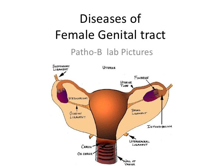 Diseases of female genital tract