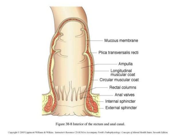 m line imperforate anus