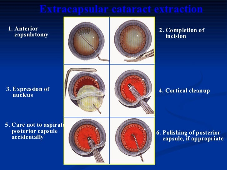 steroids for cystoid macular edema