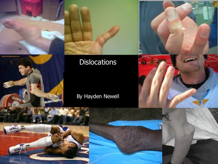 By Hayden Newell Dislocations By Hayden Newell