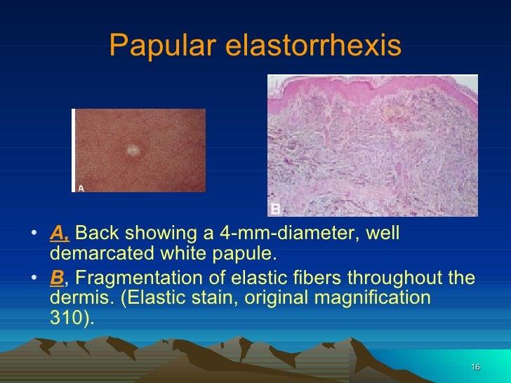 Disorders Of Elastic Tissue
