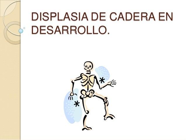 DISPLASIA DE CADERA EN DESARROLLO.